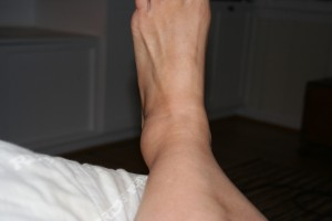 Big Ass Ankle